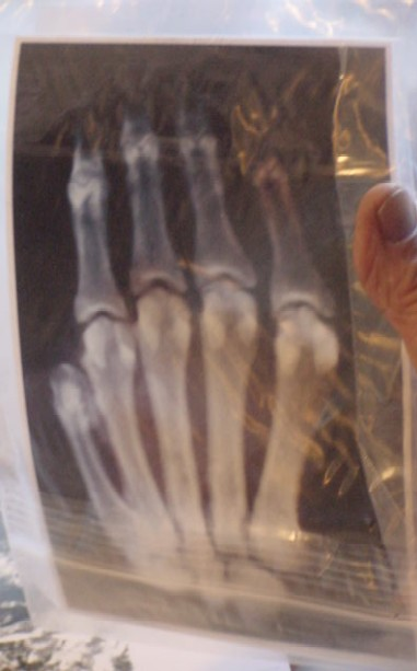 The Hand of Unknown Origin X-Ray